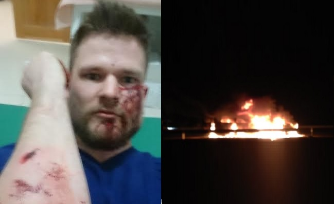 Norwegian Journalist Attacked in Russia